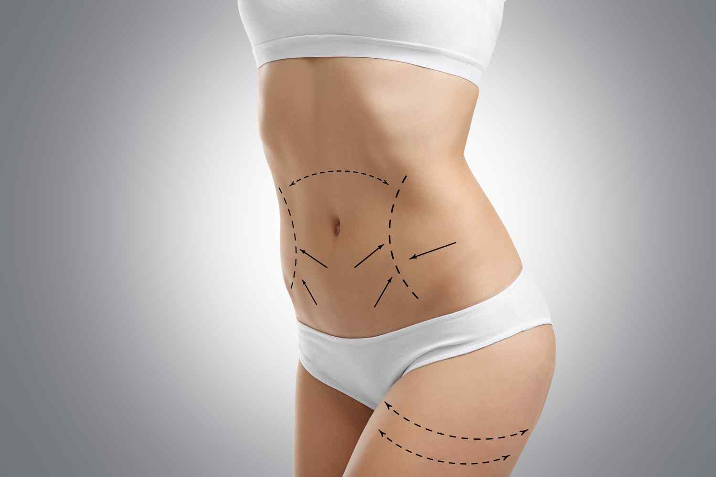 https://studiomedicopagella.it/wp-content/uploads/2017/08/cosmetic-surgery-blog-06.jpg