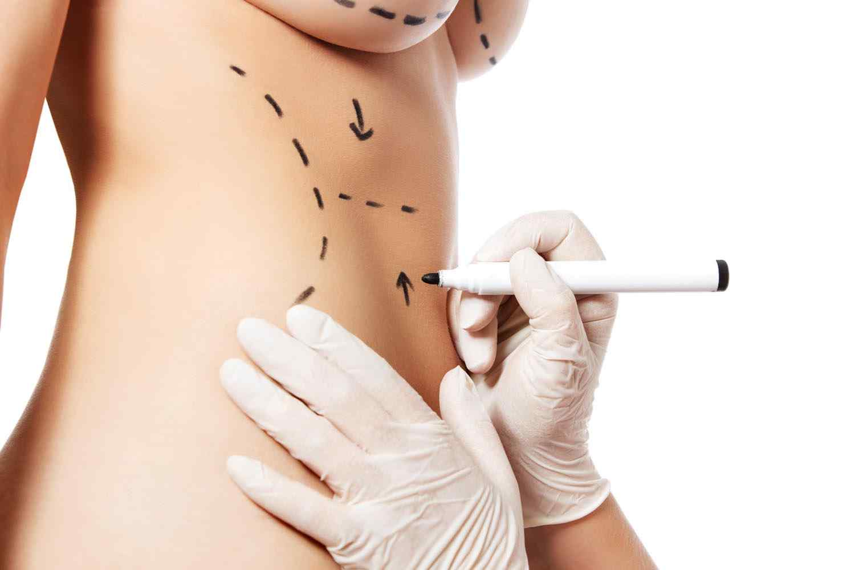 https://studiomedicopagella.it/wp-content/uploads/2017/08/cosmetic-surgery-blog-11.jpg